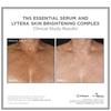 SkinMedica LYTERA Skin Brightening Complex (2 oz): Image 2