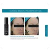 SkinCeuticals Phloretin CF Gel: Image 3