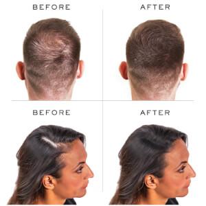 Nanogen Hair Thickening Fibres Dark Brown (30g): Image 3