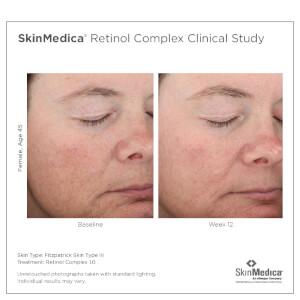 SkinMedica Retinol Complex 1.0: Image 3