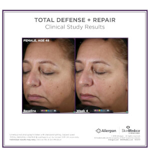 SkinMedica Total Defense and Repair SPF 50: Image 2