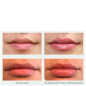 Replenix Pure Hydration Plumping Lip Treatment 4ml: Image 2