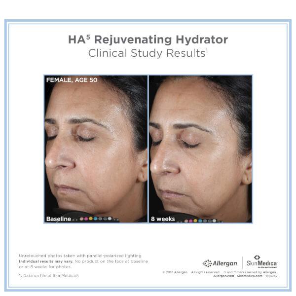 Skinmedica Ha5 Rejuvenating Hydrator Buy Online At