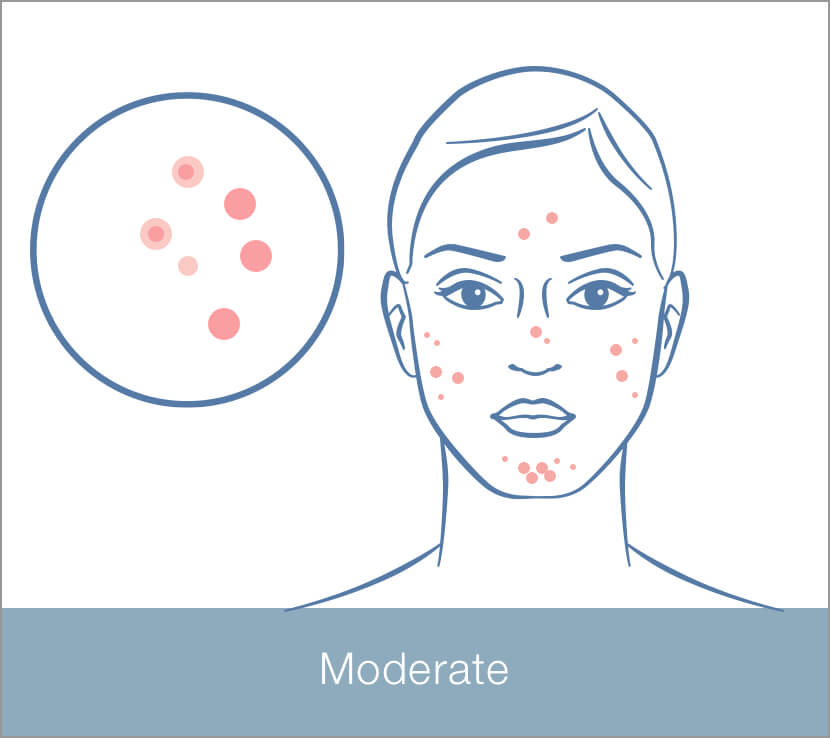 Moderate Blemishes/Breakouts